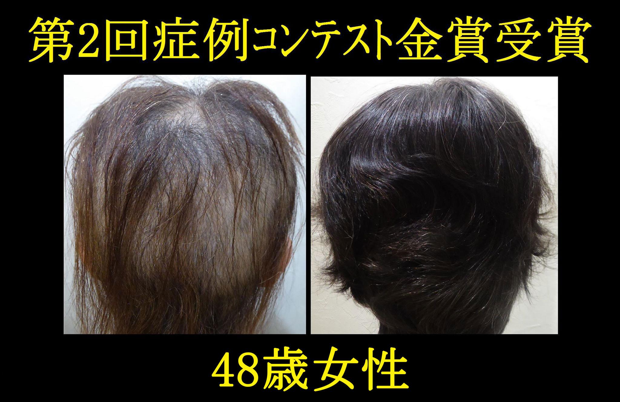 発毛症例1