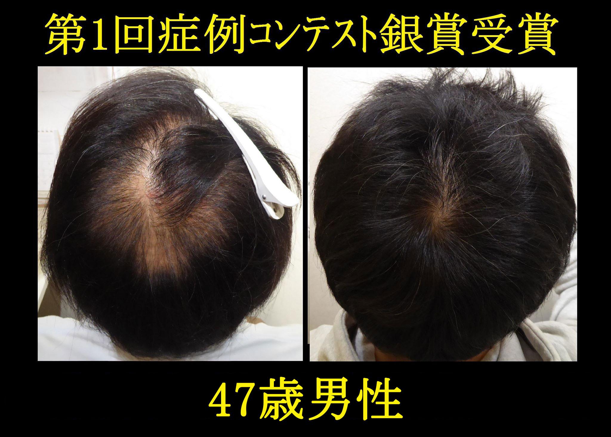 発毛症例2