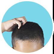 脂っぽいなど頭皮環境が心配
