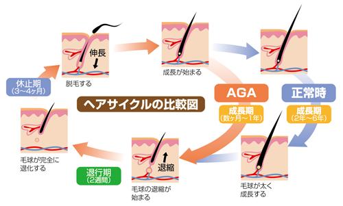 薄毛のヘアサイクル