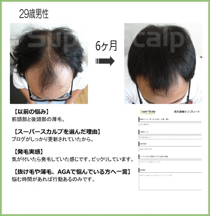 no10(仙台泉)29歳男性