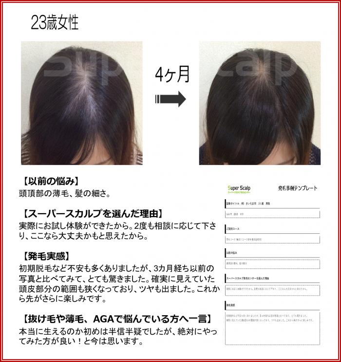 2015 NO19 仙台泉 23歳女性