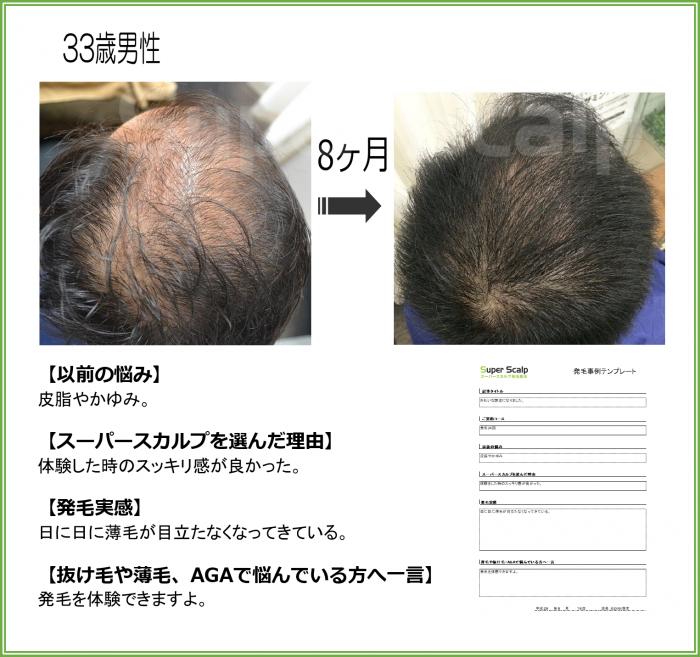 2016.no106 33歳男性 茨木市駅前店