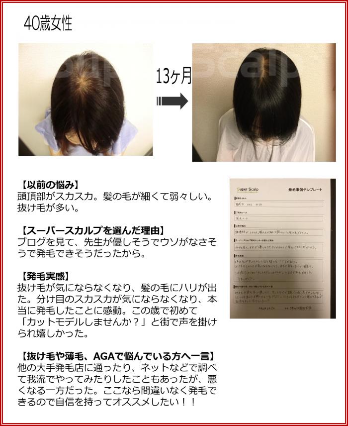 NO171 博多祇園駅前店40歳女性