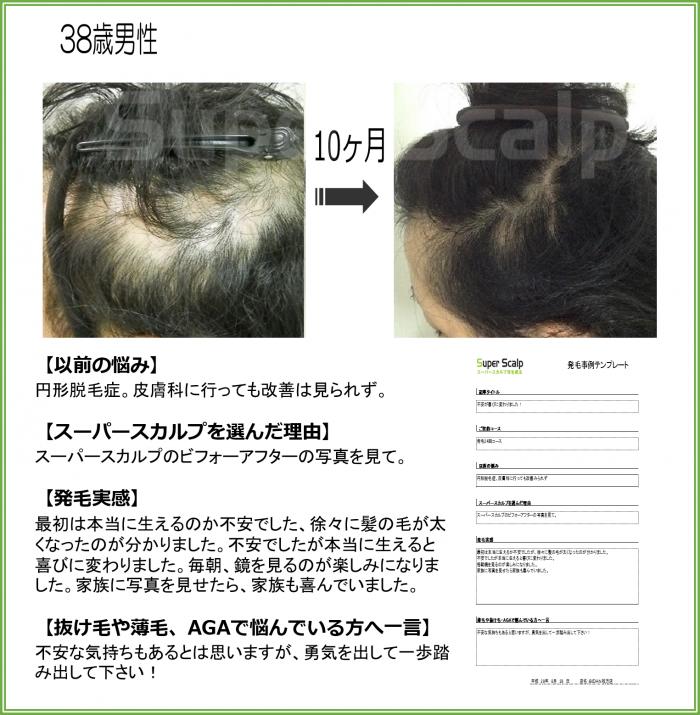 2016.NO111 38歳枚方駅前店円形