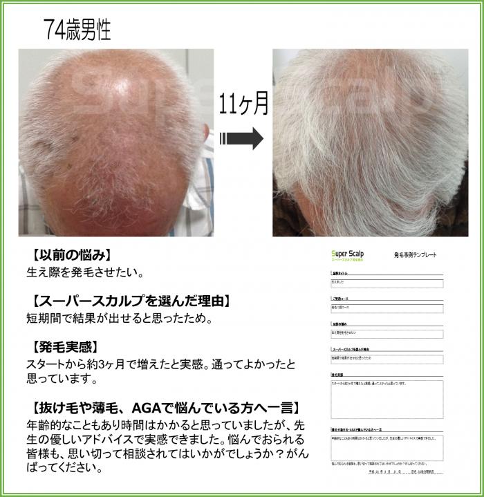 70代男性発毛