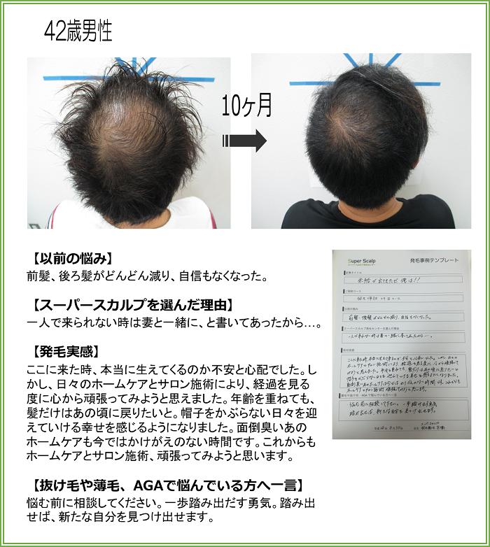 no118 42歳男性 京橋店