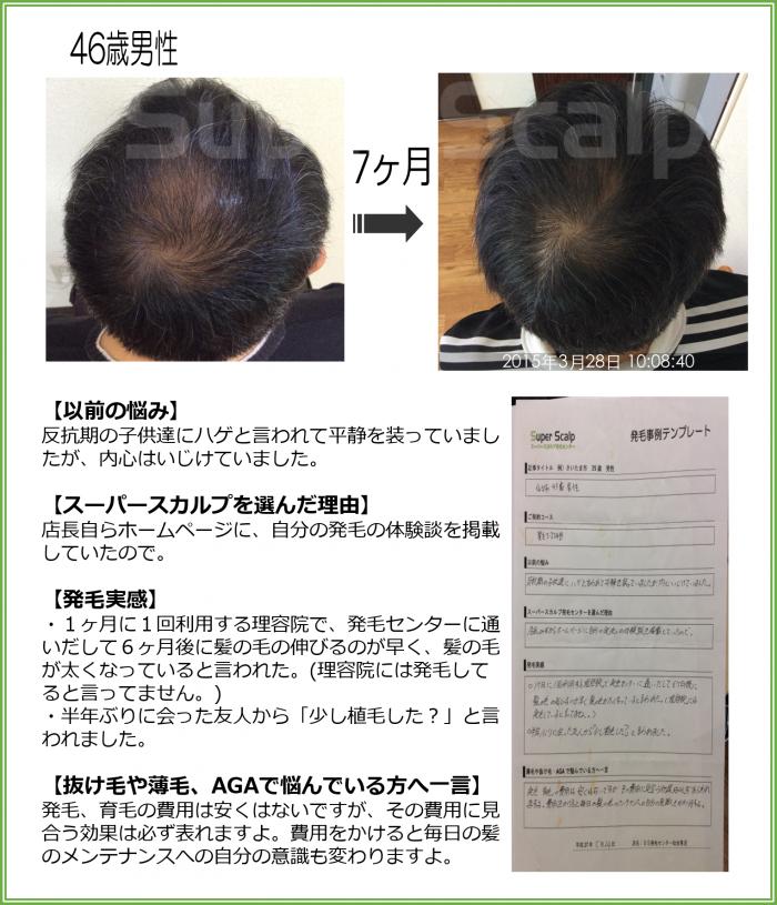 2016NO153 仙台泉46歳男性