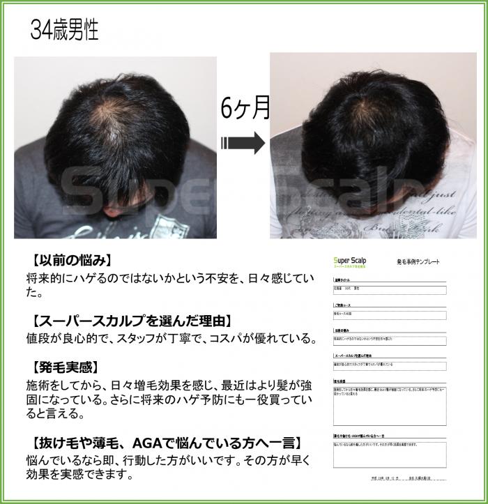 NO120 34歳男性 札幌大通り