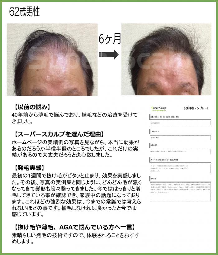 NO72仙台泉店62歳