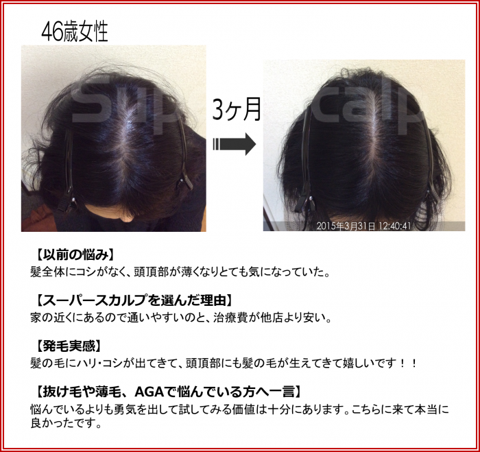 NO103 仙台泉41歳女性