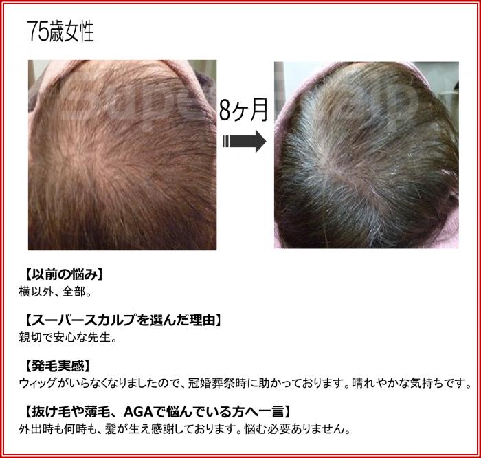 高齢女性発毛薄毛