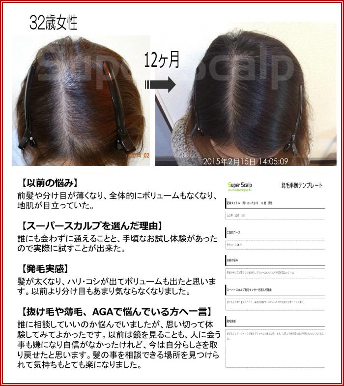 NO70 32歳女性仙台泉